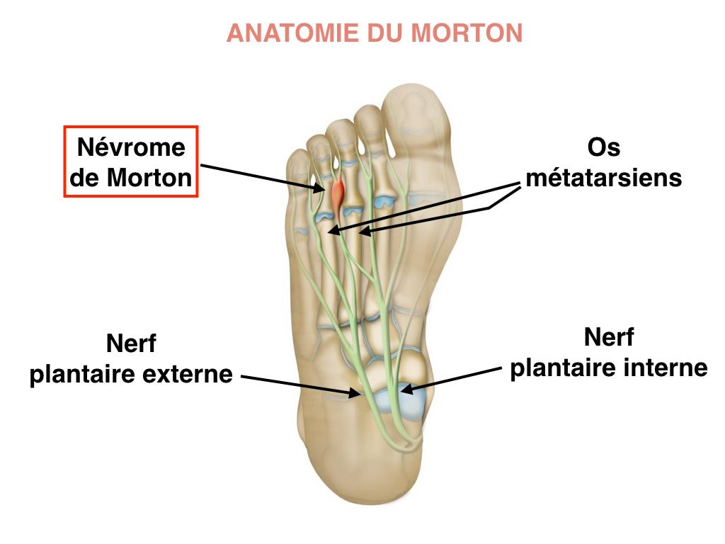 Anatomie du névrome de Moton