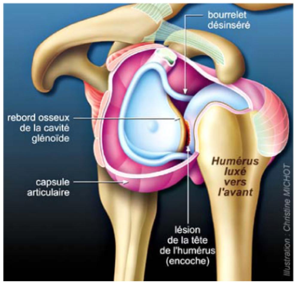 Lésions lors des luxations de l'épaule