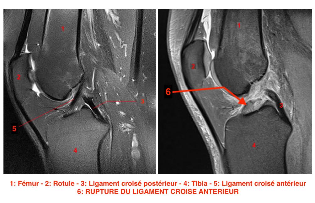 IRM et ligament croisé