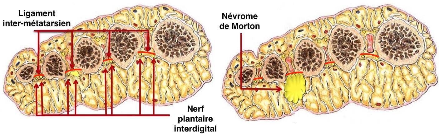 Anatomie en coupe
