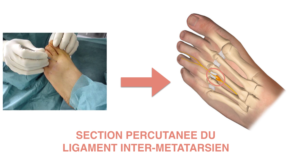 Section du ligament inter-métatarsien