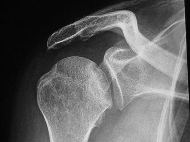Ostéonécrose de la tête humérale