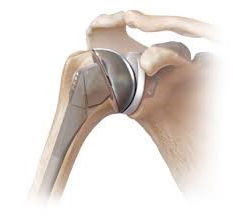 Prothèse Totale de l'Epaule