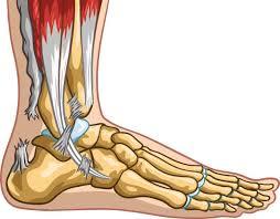 Rupture du tendon d'Achille