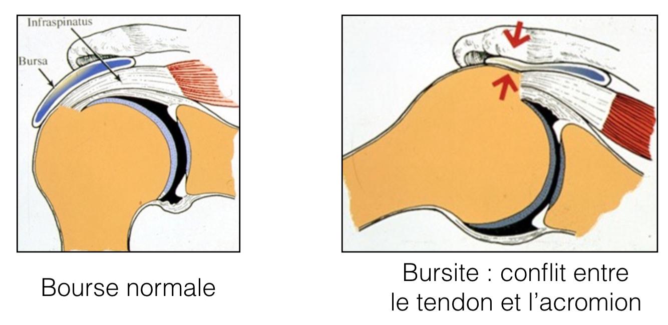 Conflit sous-acromial