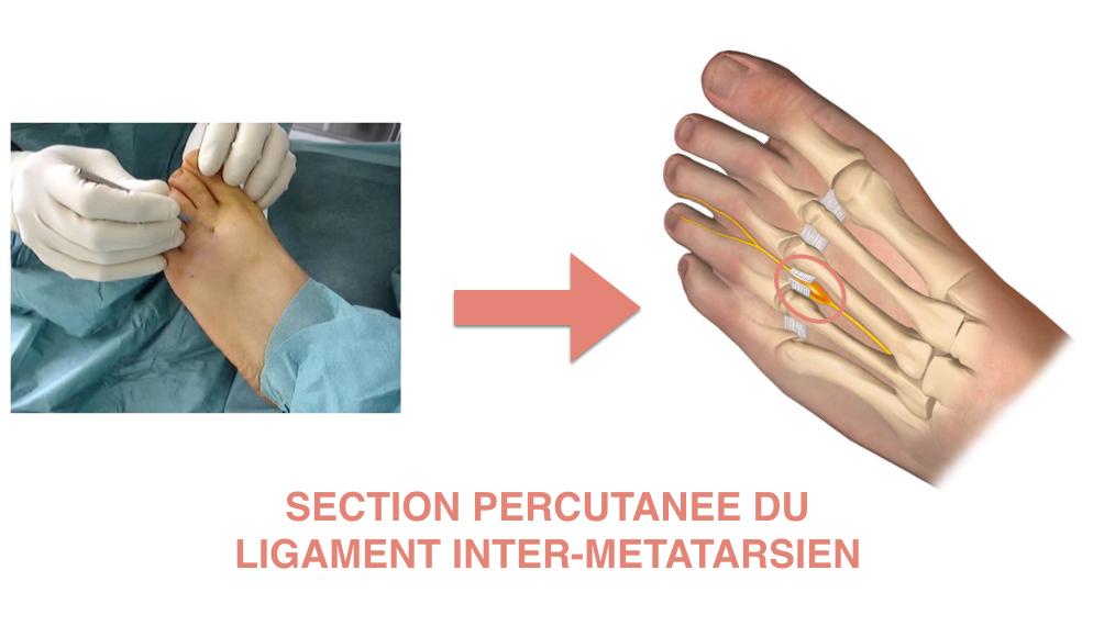 Section du ligament inter-métatarsien