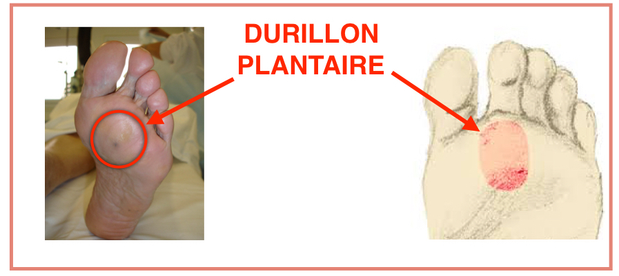 Durillon plantaire