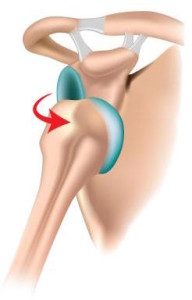 Shoulder-Dislocation