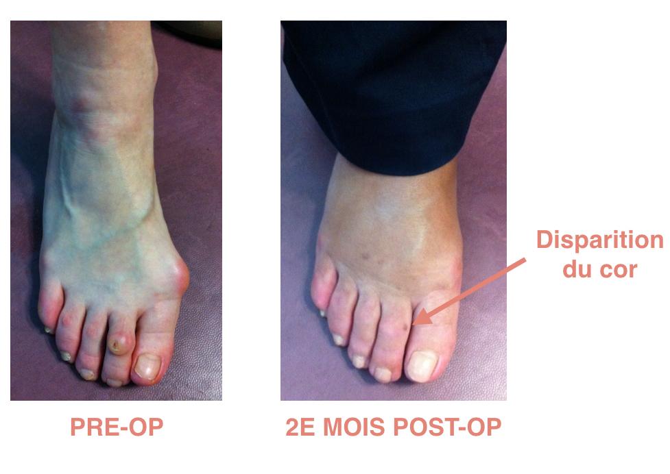 Griffe Pré-op / Post-op à 2 mois