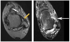 IRM de la cheville et lésion du LTFA