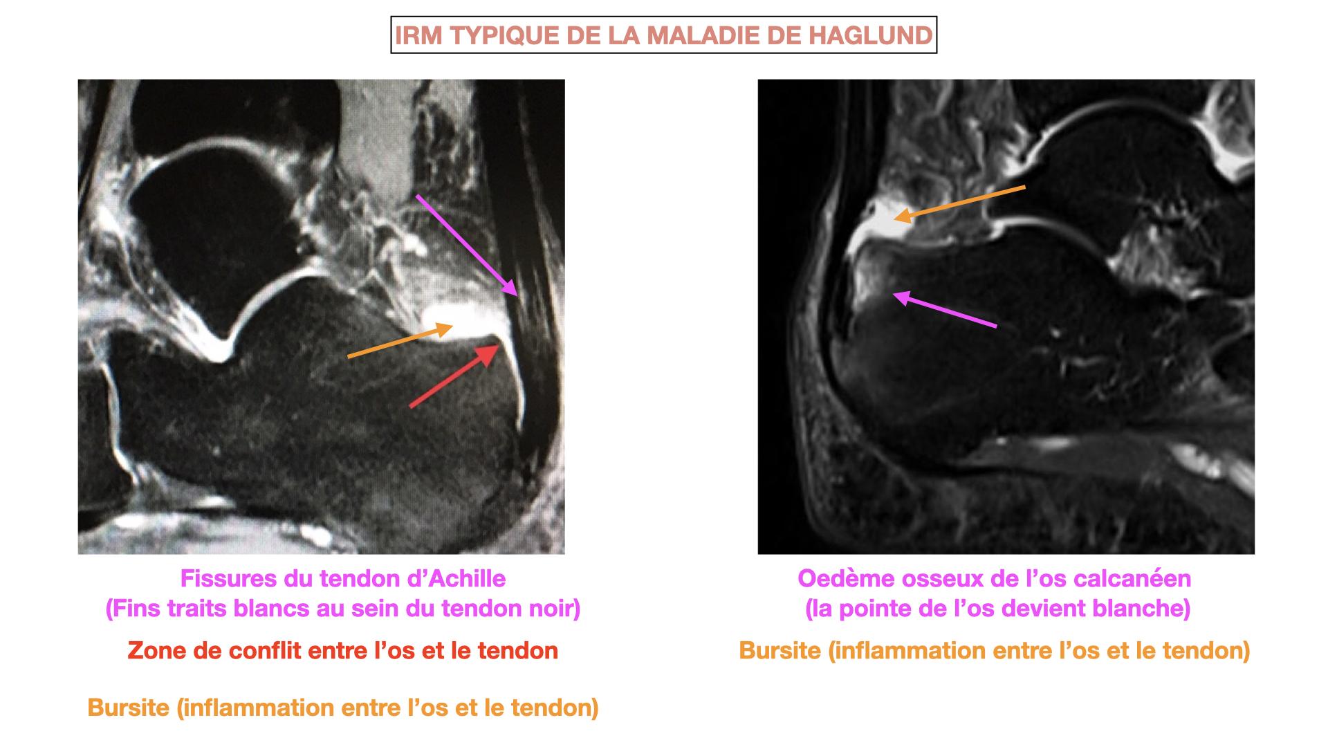 IRM Haglund.001