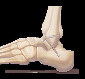 Ligamentoplastie anatomique