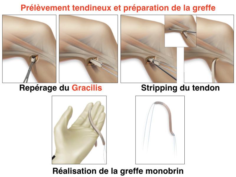 Prélèvement et préparation du Gracilis