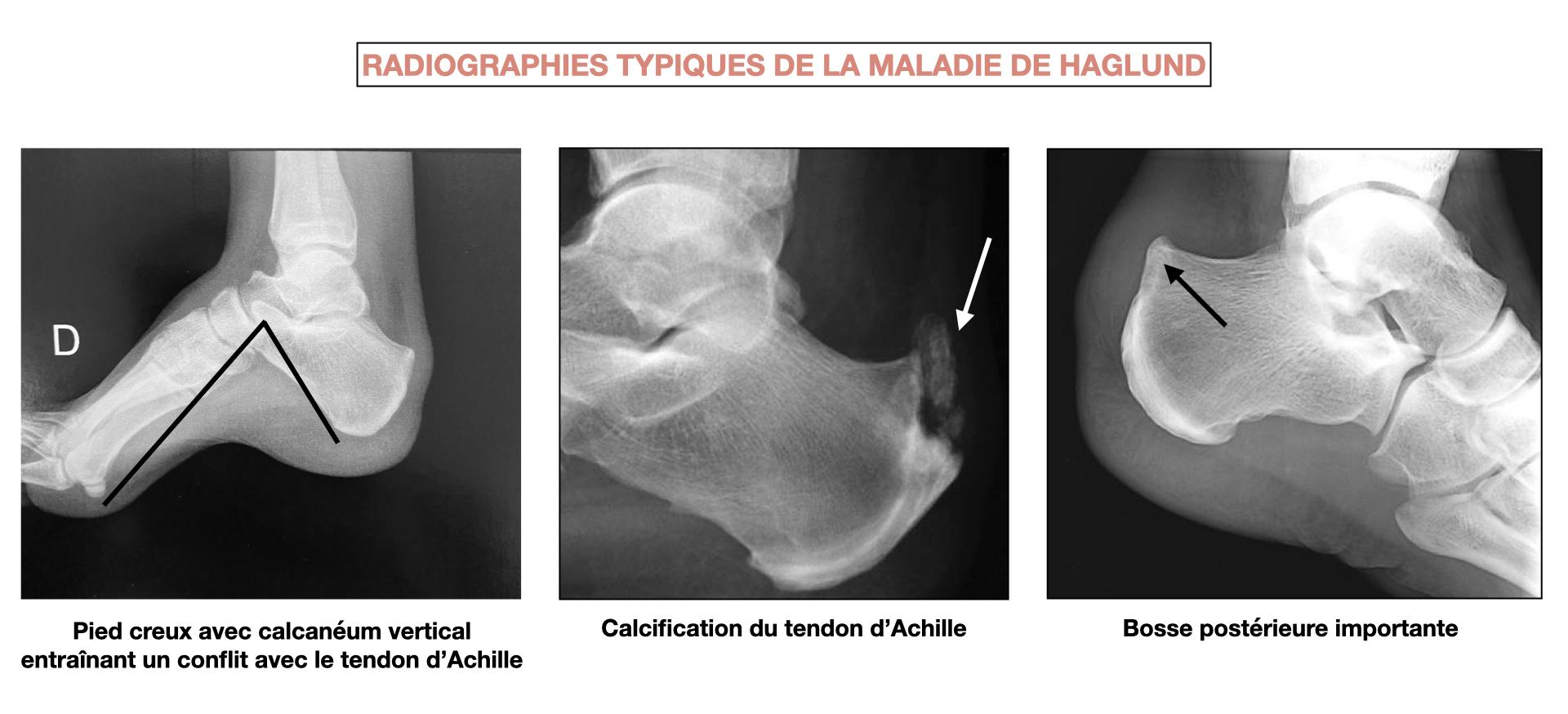 Radiographies montrant la bosse postérieure et un cas de pied creux avec calcanéum vertical