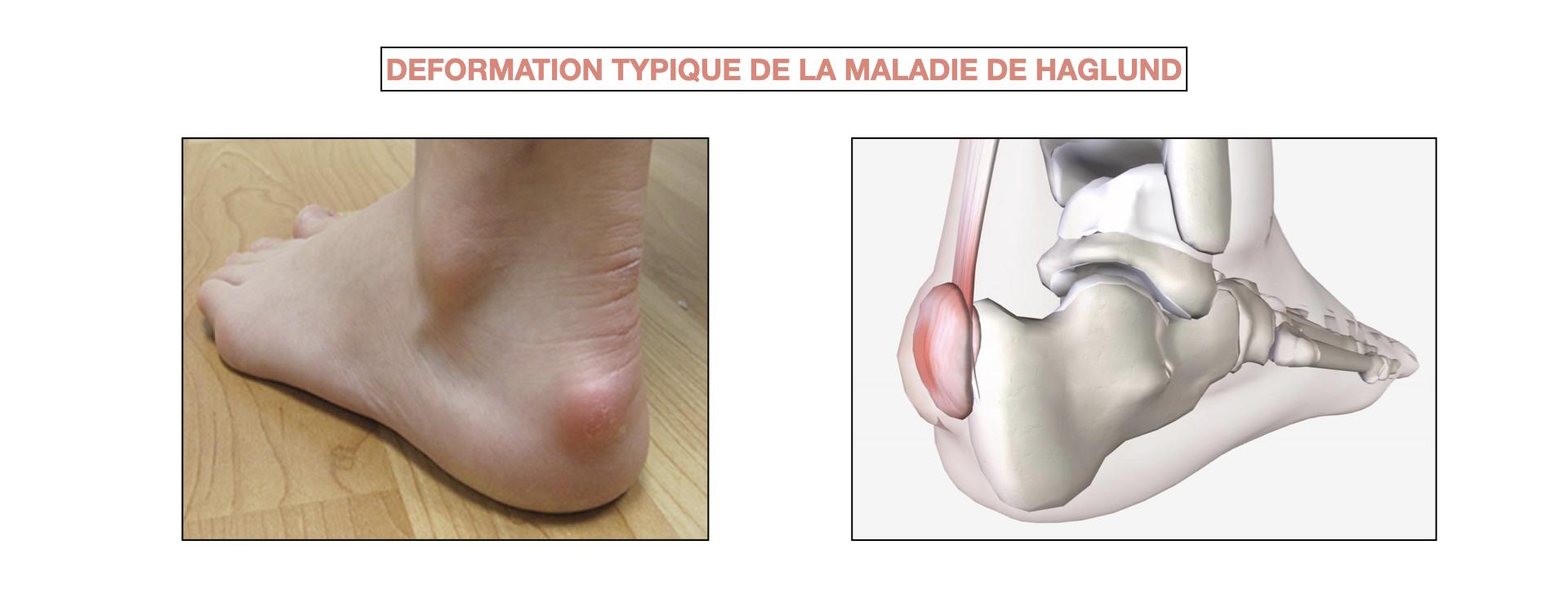 Déformation typique de la maladie de Haglund