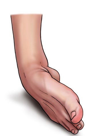 Entorses et ligamentoplasties de la cheville